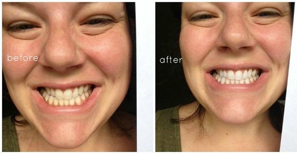 teeth7.jpg